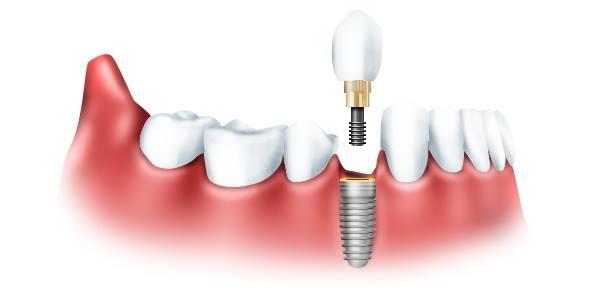 Імплатнація зубів