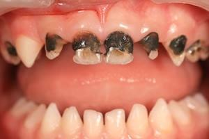 Чорніють зуби у дитини