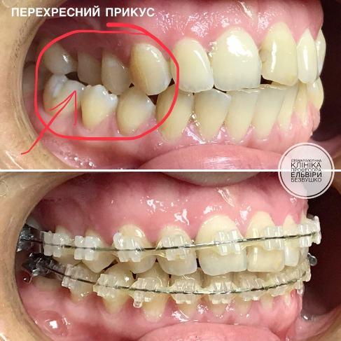 чому болить голова від зуба