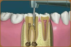 Метод депофореза в ендодонтії