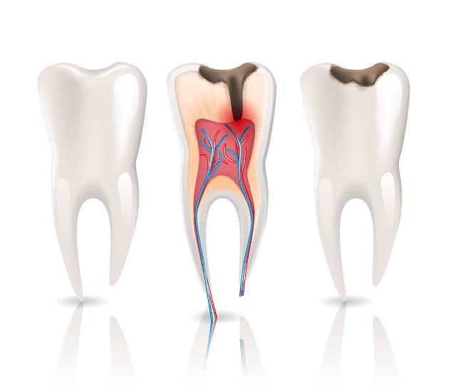 Причини пульпіту і зубного болю