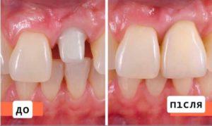 Цирконієва коронка, фото до і після