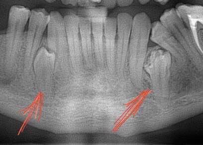 Ретенований зуб