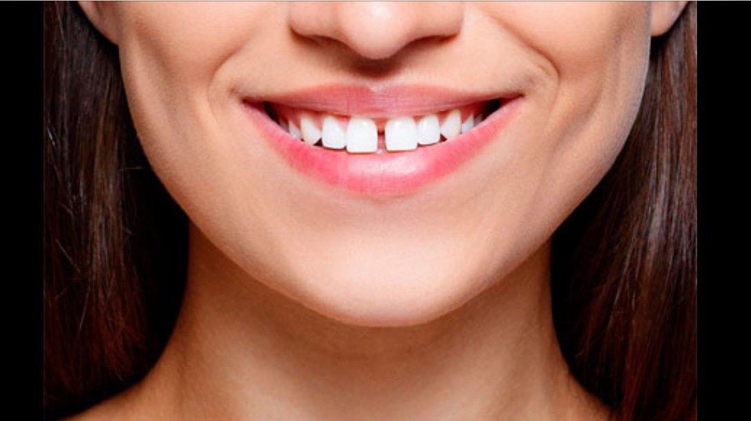 Підрізання вуздечки губи або язика
