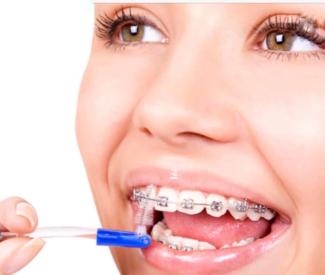 Догляд за зубами з брекетами